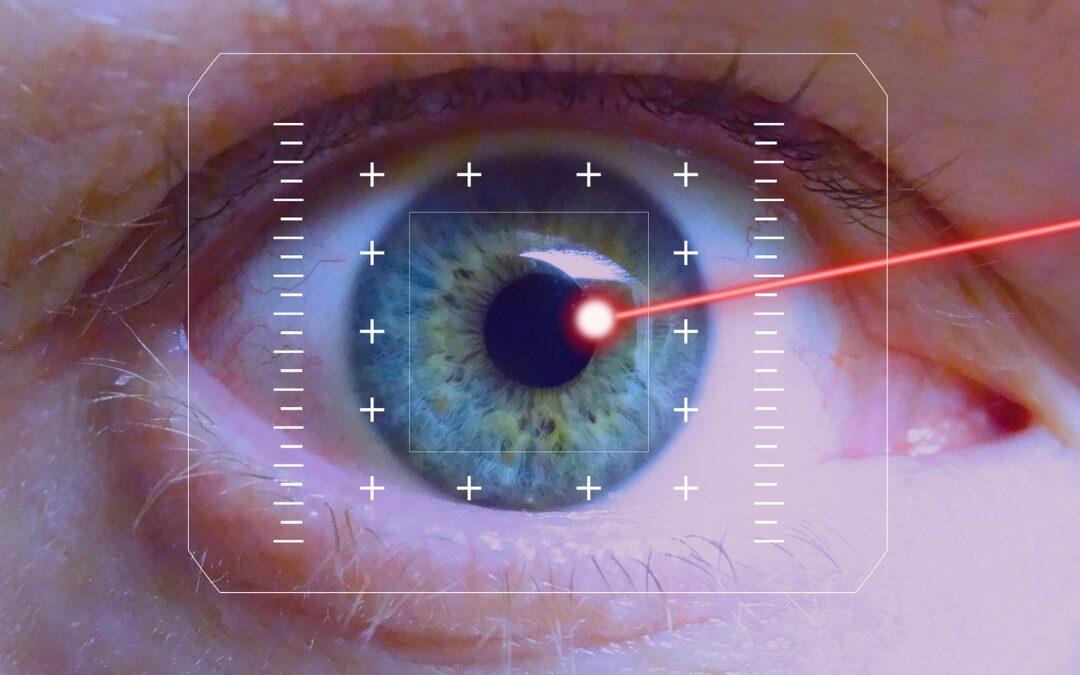 opération au laser Lasik_Image