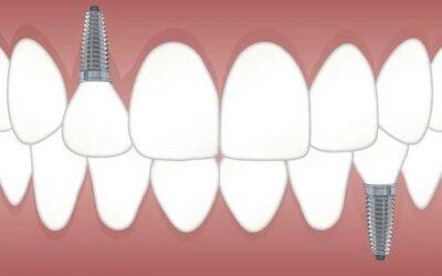 Sauvez votre sourire en optant pour des implants dentaires